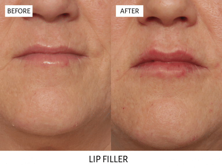 lip filler results