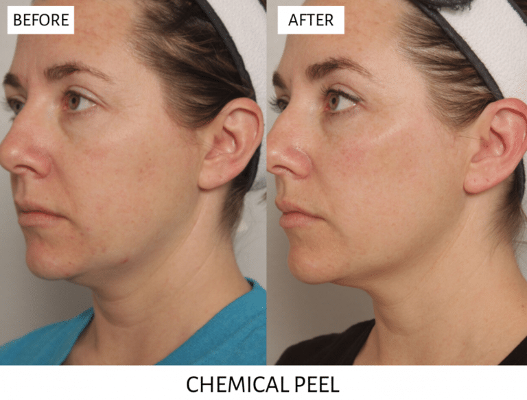 skin rejuvenation chemical peels
