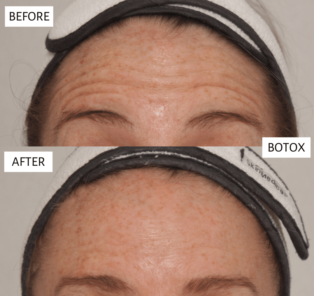 botox fountain club results