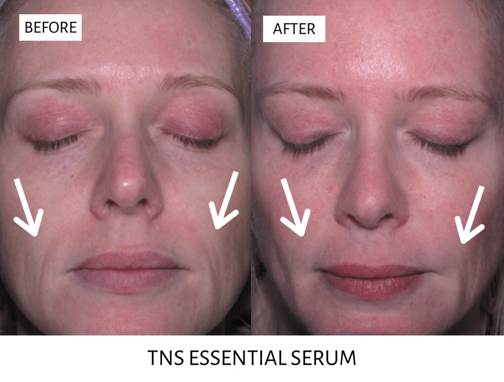 tns essential serum fountain club